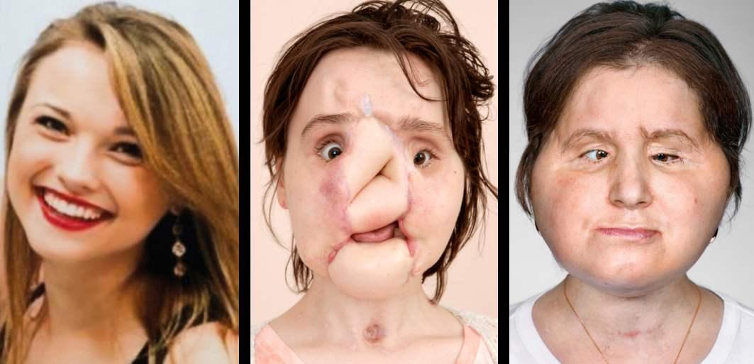 Зүүн гар талаас эхний зураг: Кэйти Стаблфилд 18 настайдаа