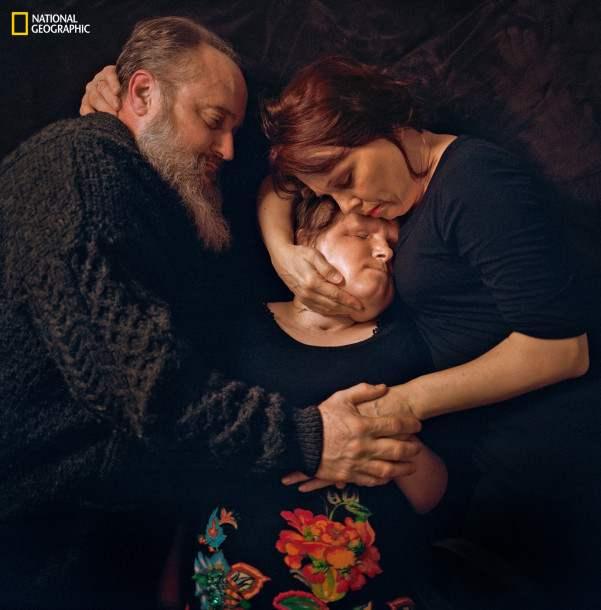 Нүүр шилжүүлэн суулгасны дараа Кэйти эцэг эхийн хамт