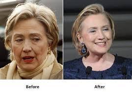 Хиллари Клинтон мэс засал хийлгэжээ