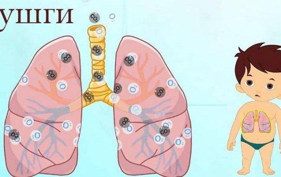 """""""Уушгины хатгалгаа өвчинтэй тэмцэх дэлхийн өдөр"""" тохиож байна"""