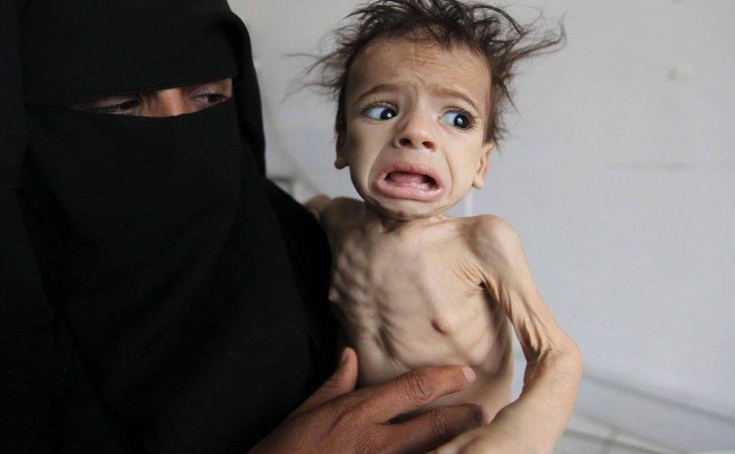 Йемений дайны улмаас өлсгөлөн газар авч байна гэв