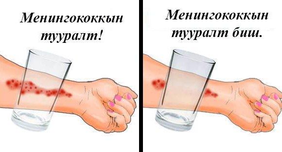 Менингококкын халдварын шинж тэмдгийг хүн бүр мэдэж байх шаардлагатай