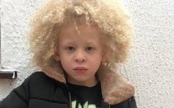 Таван настай альбино хүү брэндийн нүүр царай болжээ