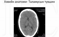 Толгойн компьютер томографи