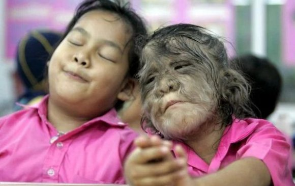 """Испанид 16 хүүхэд """"хүн-чоно синдром""""-оор өвчилжээ"""