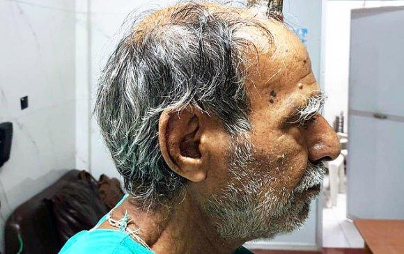 Энэтхэг фермерийн толгой дээр 10 см эвэр ургажээ