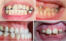 Шүд цоорох өвчний гол шалтгаан нь хоол хүнсний буруу хэрэглээ