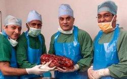 Энэтхэгийн эмч нар өвчтөний биеэс 7,4 кг жинтэй бөөрийг амжилттай гаргажээ