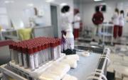 ОХУ: ХДХВ-ийн халдвартай өвчтөнд үзүүлэх тусламжийн гарын авлагыг шинэчиллээ