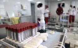ХДХВ-ийн халдвартай өвчтөнд үзүүлэх тусламжийн гарын авлагыг шинэчиллээ