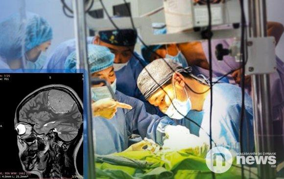 """Ньюс хөтөч: """"Тархи судлалын үндсэн техник"""" олон улсын сургалт эхэлнэ"""