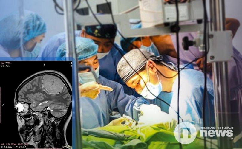 Тархины том хэмжээтэй хавдар авах мэс заслыг анх удаа хийжээ
