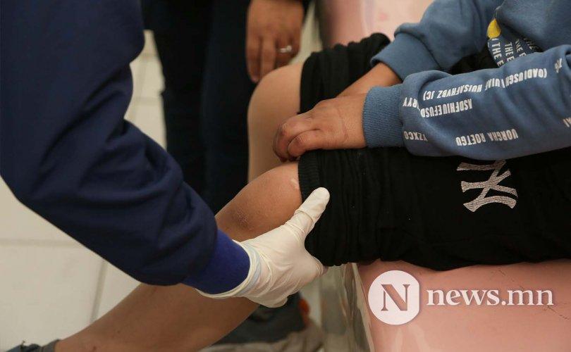 Гурван хоногийн дотор 440 хүүхэд гэмтлийн эмнэлэгт ханджээ