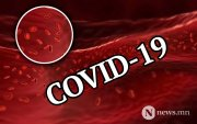 Covid-19 амьсгалын замын биш цусны судасны өвчин байж магадгүй