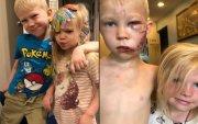 Дүүгээ нохойнд хазуулахаас хамгаалсан 6 настай хүүг хэвлэлүүд онцлов