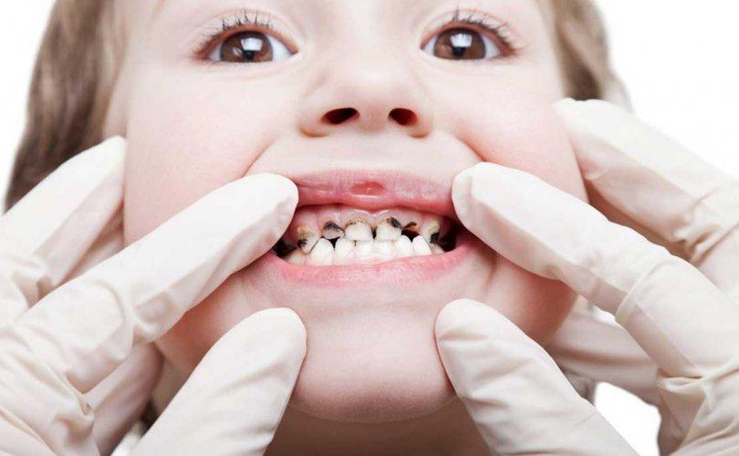 Фтор ба эрүүл шүд