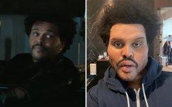 """""""The Weeknd"""" гоо сайхны мэс засал хийлгэсэн үү?"""