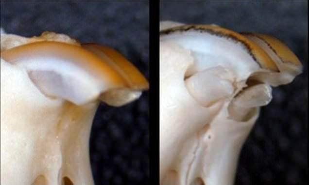 Япон эрдэмтэд ясан шүдийг дахин ургуулах эм бүтээж байна
