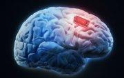Мэргэжилтнүүд тархины чипний аюулгүй байдалд эргэлзэж байна