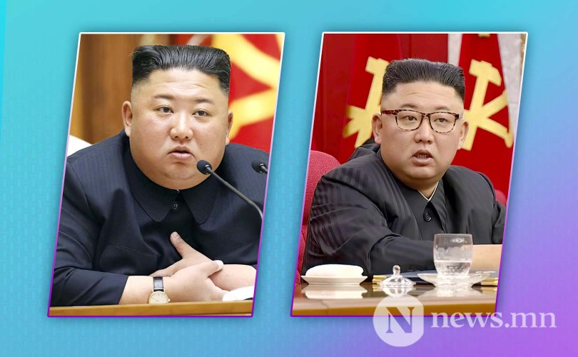 Ким Жон Ун жин хаясан нь өвчин үү, эсвэл?