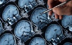 АНУ анх удаа Альцгеймерийн эмэнд зөвшөөрөл олголоо